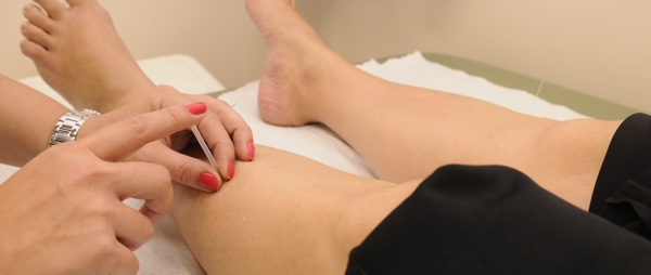 acupuncture on legs